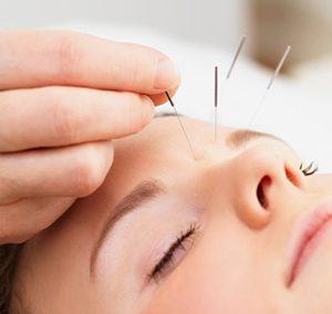 Puur Acupunctuur